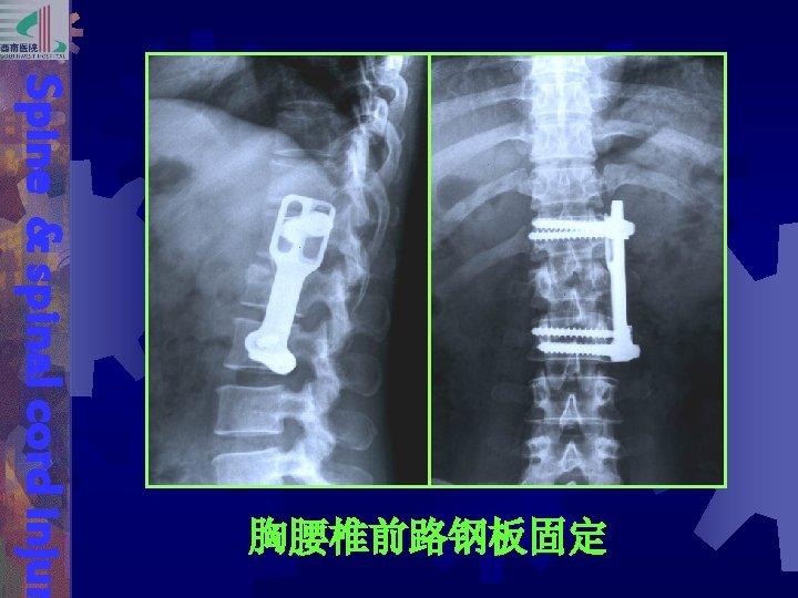 Spine & spinal cord injur 胸腰椎前路钢板固定