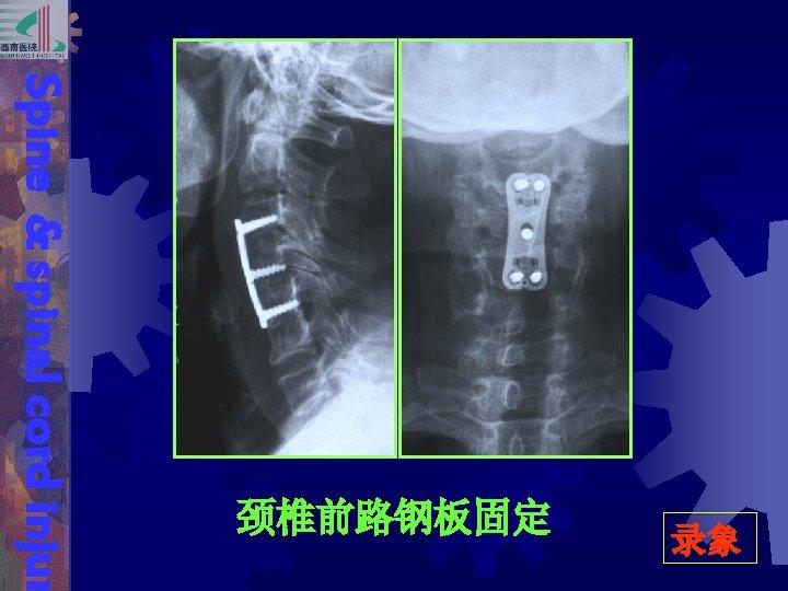 录象 Spine & spinal cord injur 颈椎前路钢板固定