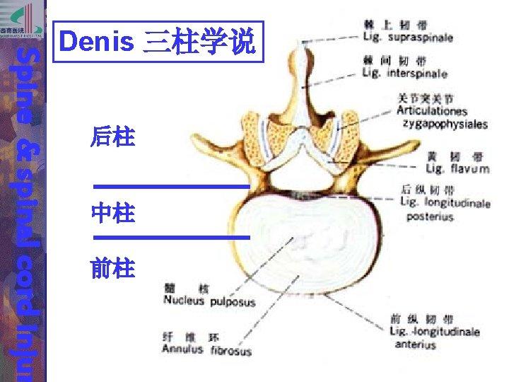 后柱 中柱 前柱 Spine & spinal cord injur Denis 三柱学说