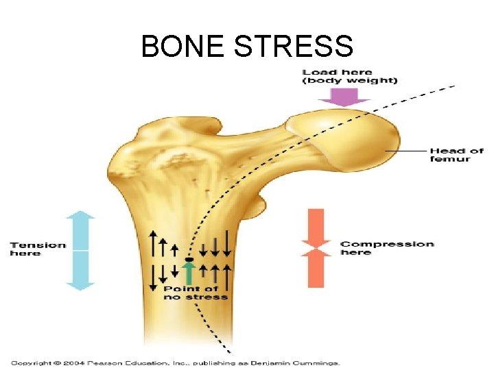 BONE STRESS