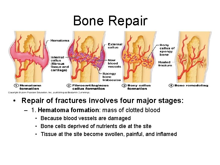 Bone Repair • Repair of fractures involves four major stages: – 1. Hematoma formation: