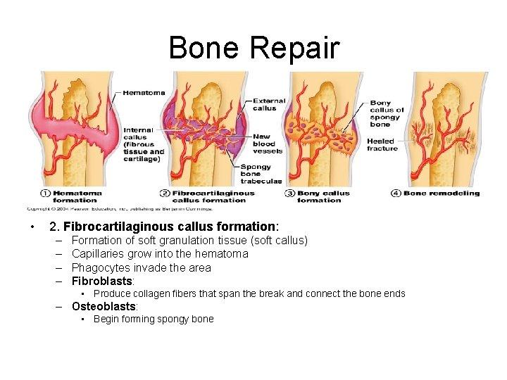 Bone Repair • 2. Fibrocartilaginous callus formation: – – Formation of soft granulation tissue