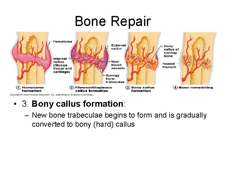 Bone Repair • 3. Bony callus formation: – New bone trabeculae begins to form