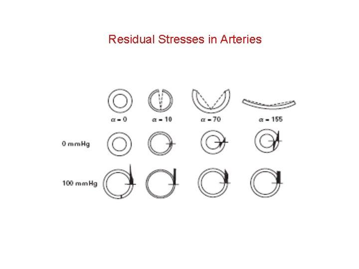 Residual Stresses in Arteries
