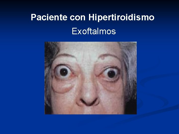 Paciente con Hipertiroidismo Exoftalmos