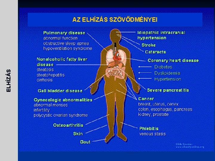 Prosztatagyulladás és adenoma kezelése izraeli készülékek