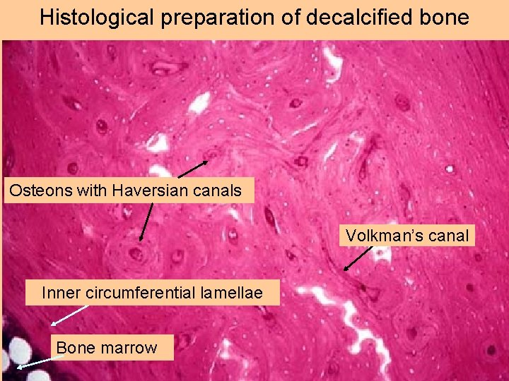 Histological preparation of decalcified bone Osteons with Haversian canals Volkman's canal Inner circumferential lamellae