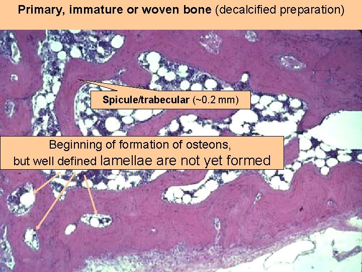 Primary, immature or woven bone (decalcified preparation) Spicule/trabecular (~0. 2 mm) Beginning of formation