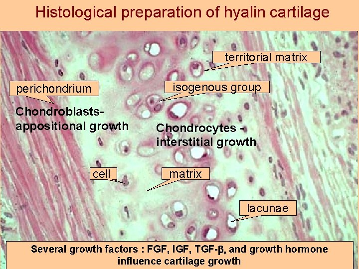 Histological preparation of hyalin cartilage territorial matrix isogenous group perichondrium Chondroblastsappositional growth cell Chondrocytes