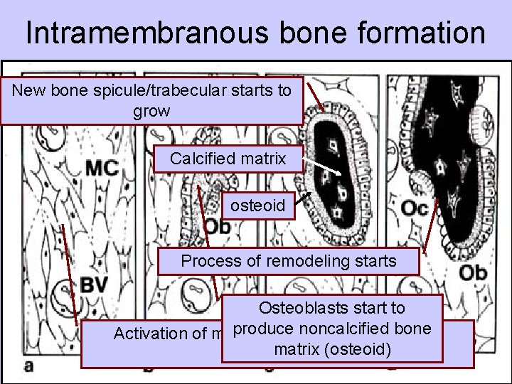 Intramembranous bone formation New bone spicule/trabecular starts to grow Calcified matrix osteoid Process of