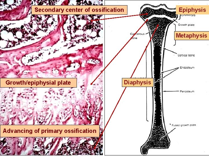 Secondary center of ossification Epiphysis Metaphysis Growth/epiphysial plate Advancing of primary ossification Diaphysis