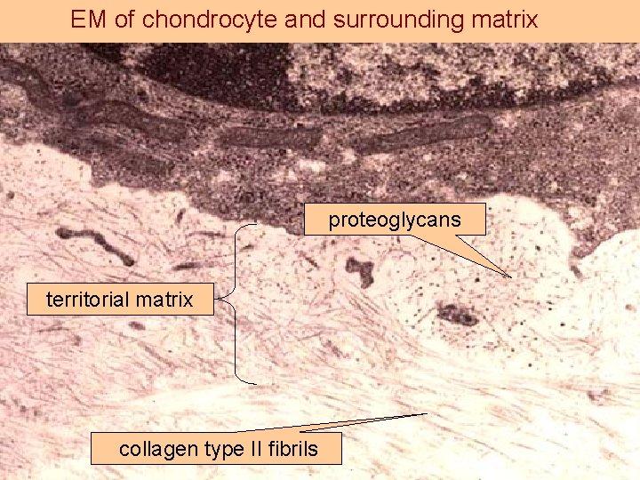 EM of chondrocyte and surrounding matrix proteoglycans territorial matrix collagen type II fibrils