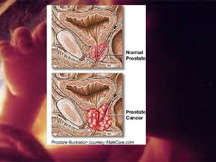 vizelet amikor a prosztata gyulladása Gyertyák megkönnyebbülés prosztatitis