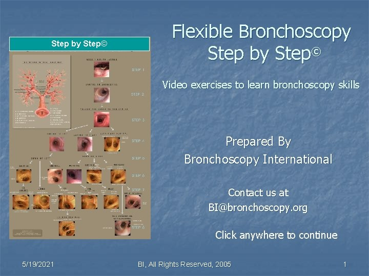 Step by Step© Flexible Bronchoscopy Step by Step© Video exercises to learn bronchoscopy skills