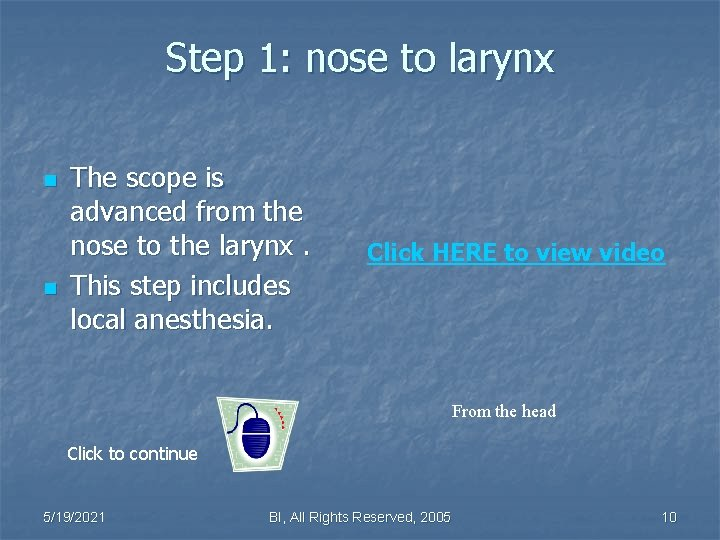 Step 1: nose to larynx n n The scope is advanced from the nose