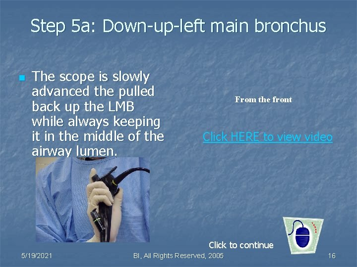 Step 5 a: Down-up-left main bronchus n The scope is slowly advanced the pulled