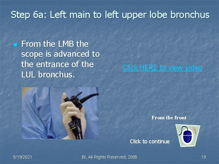 Step 6 a: Left main to left upper lobe bronchus n From the LMB