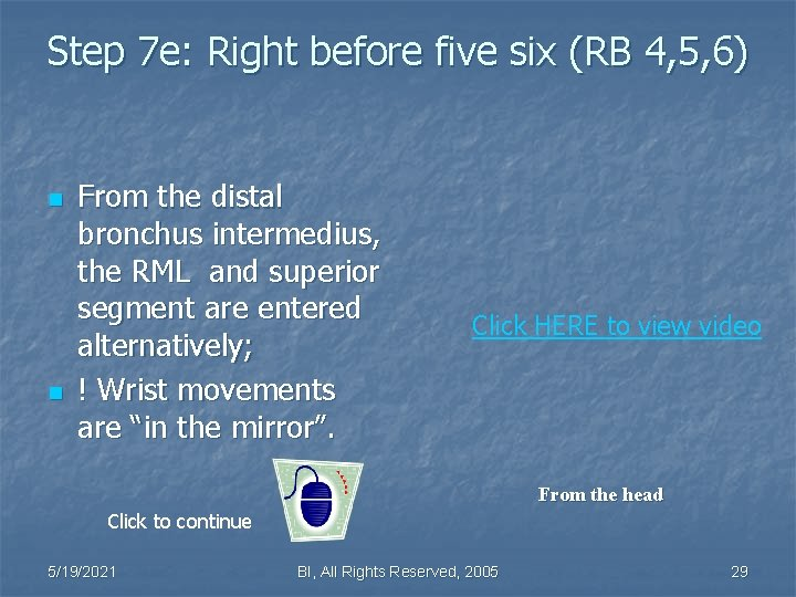 Step 7 e: Right before five six (RB 4, 5, 6) n n From