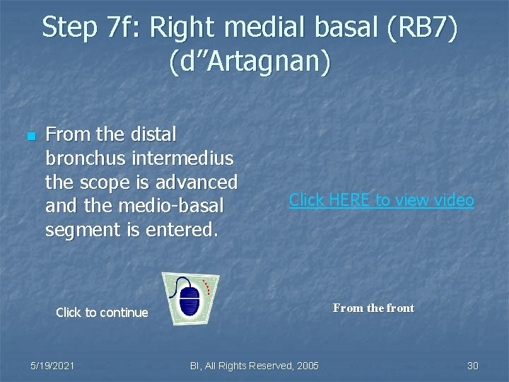 """Step 7 f: Right medial basal (RB 7) (d""""Artagnan) n From the distal bronchus"""