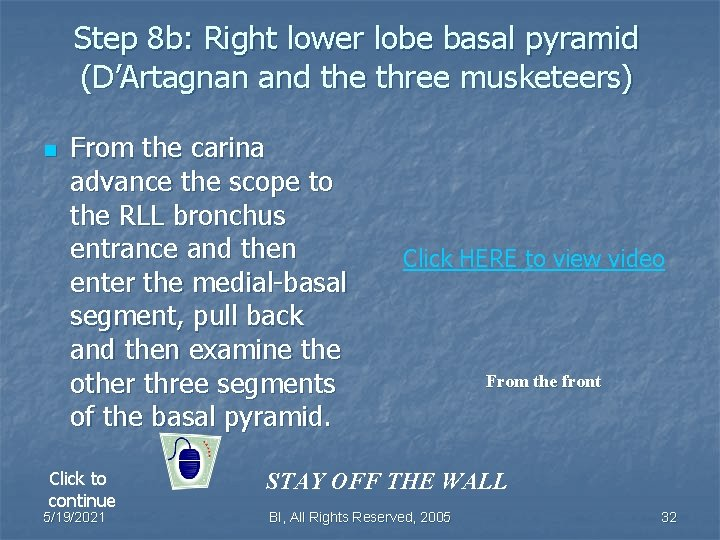 Step 8 b: Right lower lobe basal pyramid (D'Artagnan and the three musketeers) n
