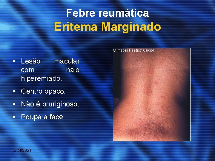 eritema marginato febbre reumatica