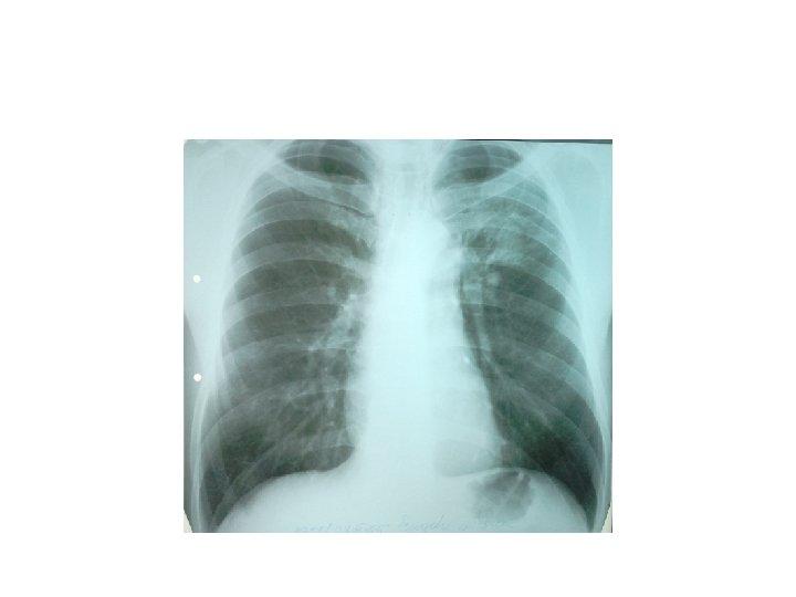primele suspiciuni de tuberculoză