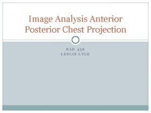 Image Analysis Anterior Posterior Chest Projection RAD 438