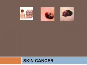 SKIN CANCER SKIN CANCER Objectives Students will be