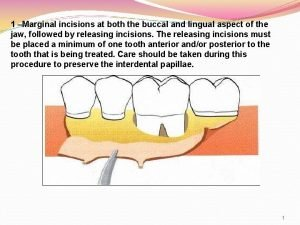 1 Marginal incisions at both the buccal and