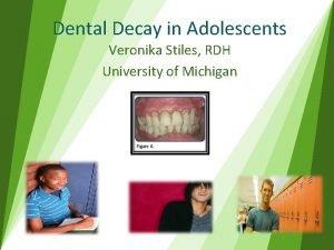 Dental Decay in Adolescents Veronika Stiles RDH University
