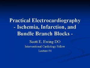 Practical Electrocardiography Ischemia Infarction and Bundle Branch Blocks