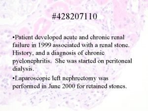 428207110 Patient developed acute and chronic renal failure