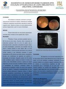 DIAGNSTICO DE ADENOCARCINOMA PULMONAR APS AVALIAO OFTALMOLGICA DE