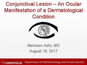 Conjunctival Lesion An Ocular Manifestation of a Dermatological