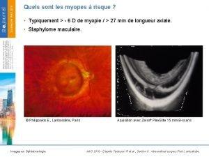 Quels sont les myopes risque Typiquement 6 D