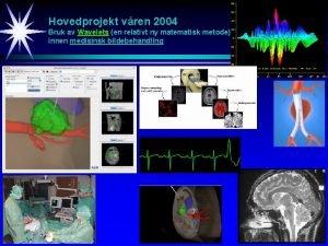 Hovedprojekt vren 2004 Bruk av Wavelets en relativt