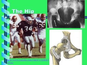 The Hip http www youtube comwatch vwdx Iz
