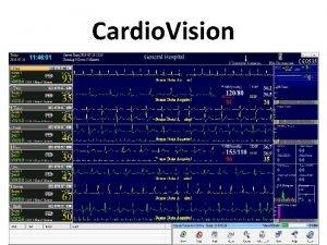 Cardio Vision Cardio Vision Hospital Monitoring Holter ECG