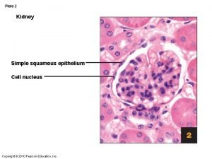 Plate 2 Kidney Simple squamous epithelium Cell nucleus