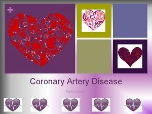 Coronary Artery Disease Kevina Desai Objectives v Understand