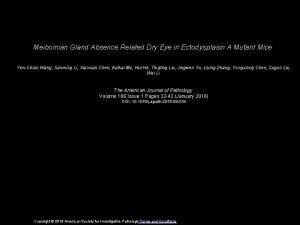 Meibomian Gland Absence Related Dry Eye in Ectodysplasin