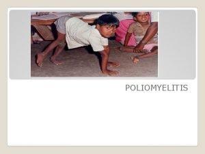 POLIOMYELITIS AGENT FACTORS Agent Poliovirus RNA virus serotype
