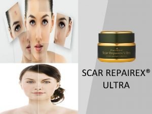 SCAR REPAIREX ULTRA ACTIVE INGREDIENTS ANTI INFLAMMATORY AGENTS