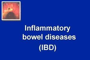 Inflammatory bowel diseases IBD Inflammatory bowel diseases Ulcerative