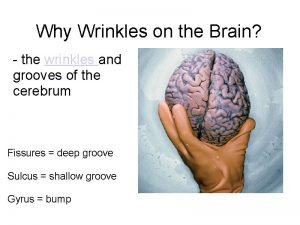Why Wrinkles on the Brain the wrinkles and
