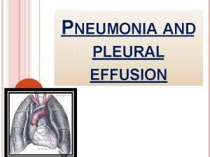 PNEUMONIA AND PLEURAL EFFUSION DEFINITION Is an acute