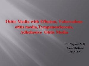 Otitis Media with Effusion Tuberculous otitis media Tympanosclerosis