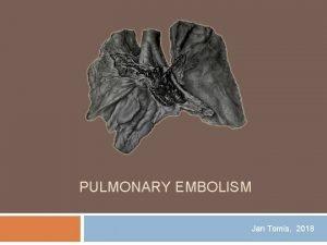 PULMONARY EMBOLISM Jan Tomis 2018 Pulmonary embolism Obstruction
