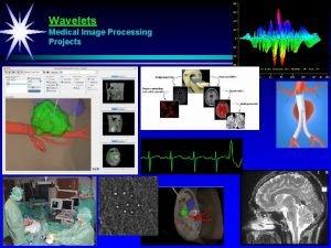 Wavelets Medical Image Processing Projects Per Henrik Hogstad