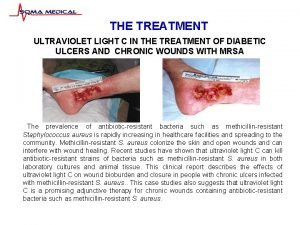 THE TREATMENT ULTRAVIOLET LIGHT C IN THE TREATMENT